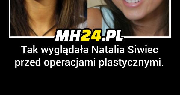 Tak wyglądała Natalia Siwiec przed operacjami plastycznymi