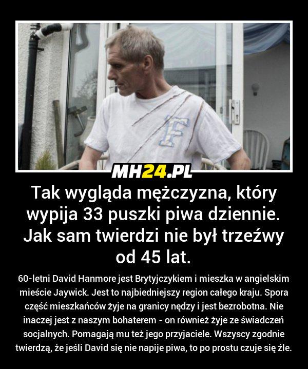 Ten mężczyzna wypija dziennie 33 puszki... Obrazki